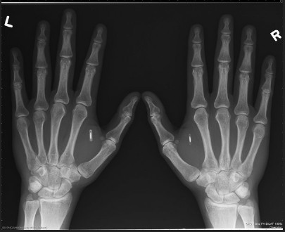 This X-ray depicts the hands of Amal Graafstra, founder of Dangerous Things. He has had two radio frequency identifier inplants in his hands which he uses to unlock his car, computer and door to his Seattle home.